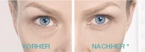 Remescar Tränensäcke und Augenringe V/N
