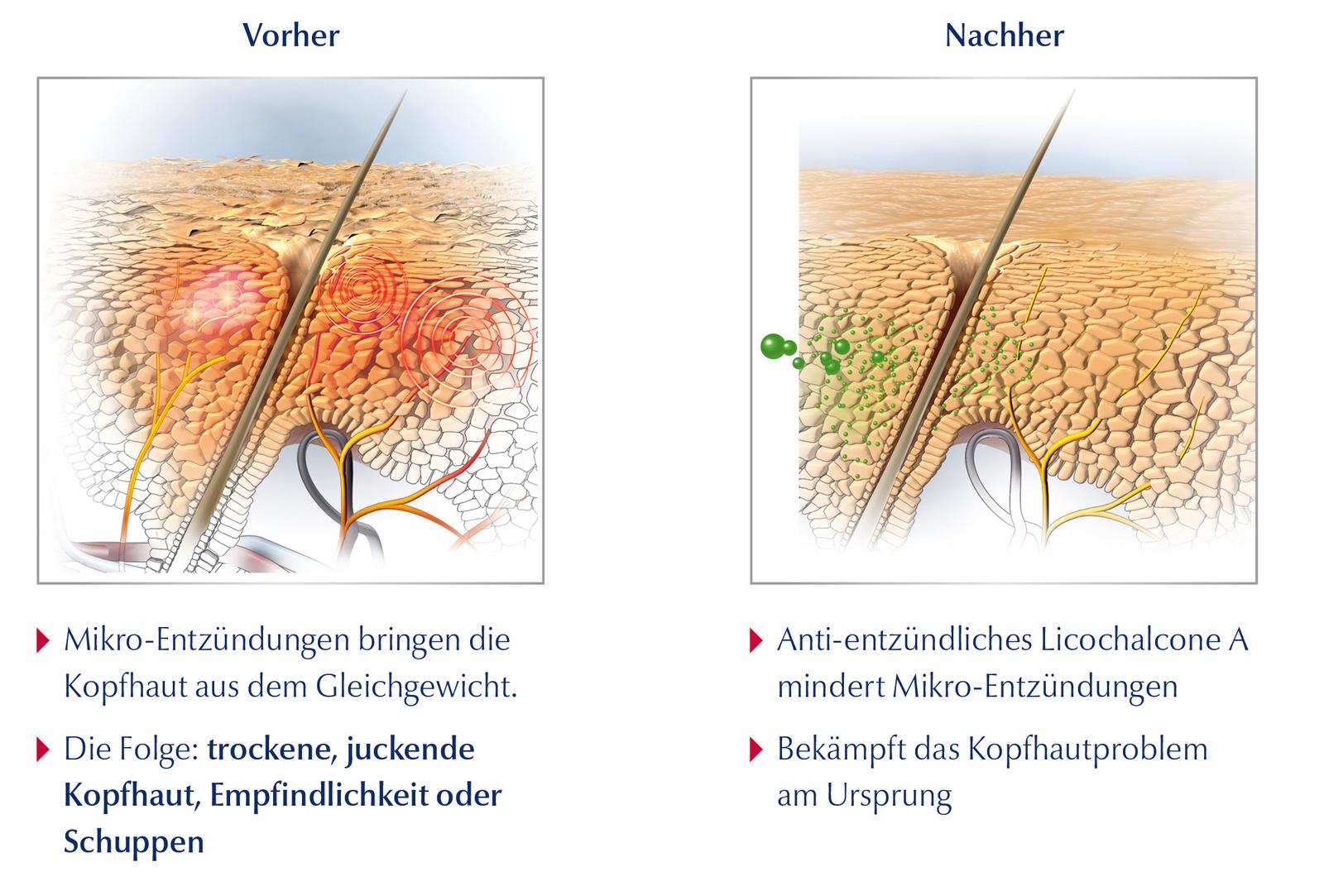 Eucerin - Kopfhaut und Haar Vorher und Nacher