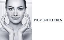 pigmentflecken Kachel
