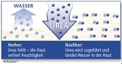 Urea bindet das Wasser in der Haut und hält die Feuchtigkeit