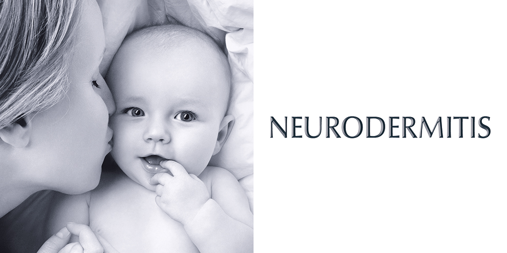 Eucerin - Neurodermitis Banner