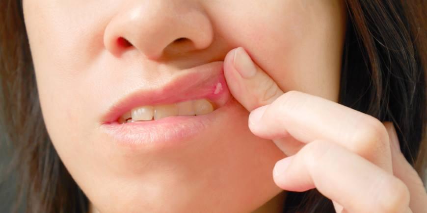 Aphte auf der Zunge