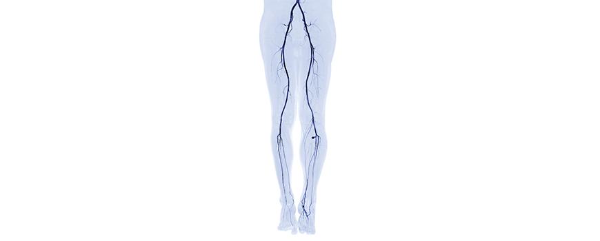 Blutkreislauf in den Beinen