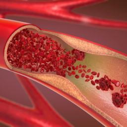 Durchblutungsstörungen – wenn das Blut nicht mehr ungehindert fließt